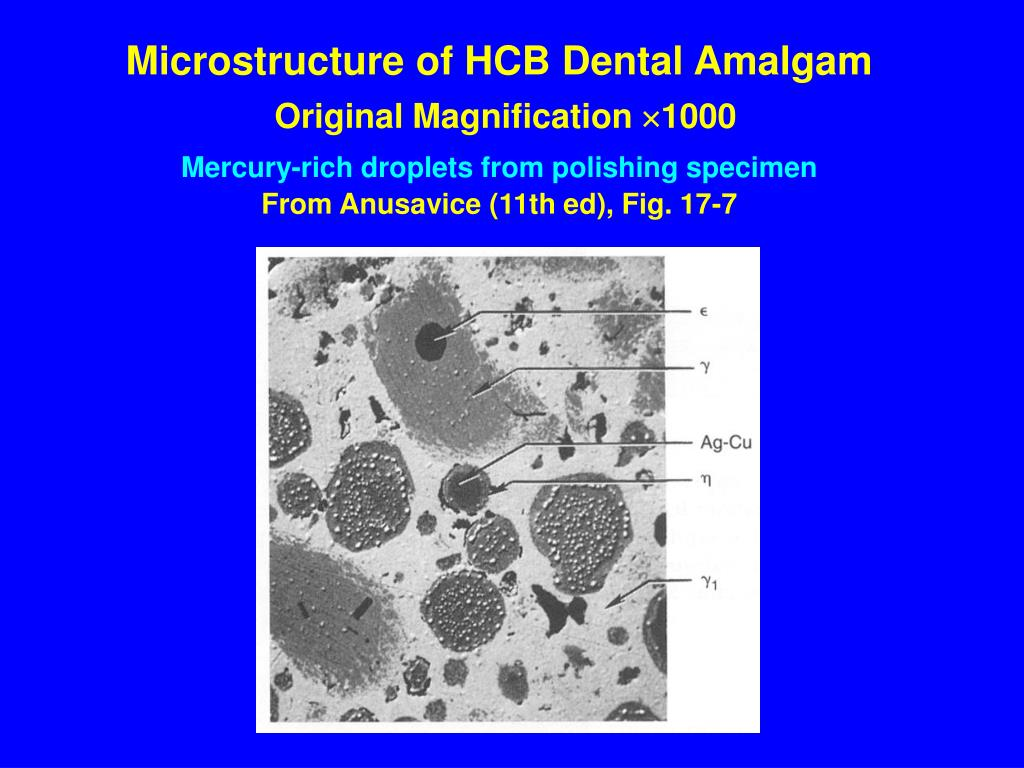 Microstructure of HCB Dental Amalgam