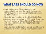 what labs should do now