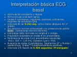 interpretaci n b sica ecg basal