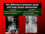 the difference between small and large bowel obstruction