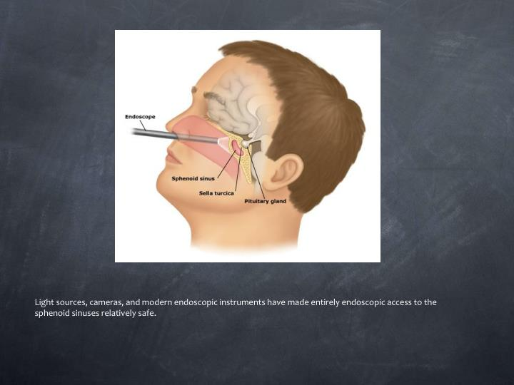 Light sources, cameras, and modern endoscopic instruments have made entirely endoscopic access to the sphenoid sinuses relatively safe.