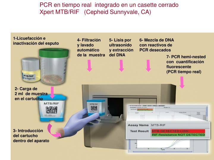 PCR en tiempo real  integrado en un casette cerrado                                                                                           Xpert MTB/RIF   (Cepheid Sunnyvale, CA)