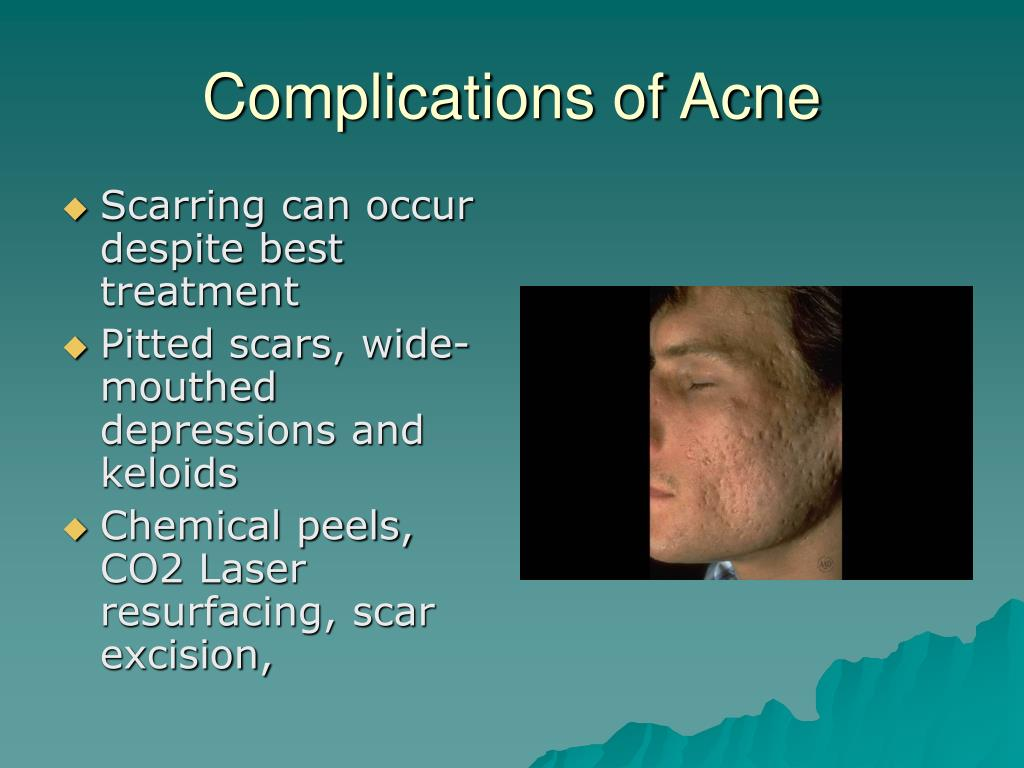 Complications of Acne