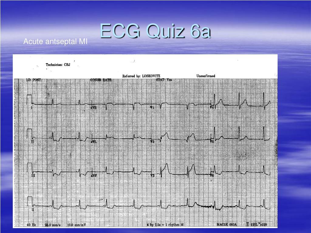 ECG Quiz 6a