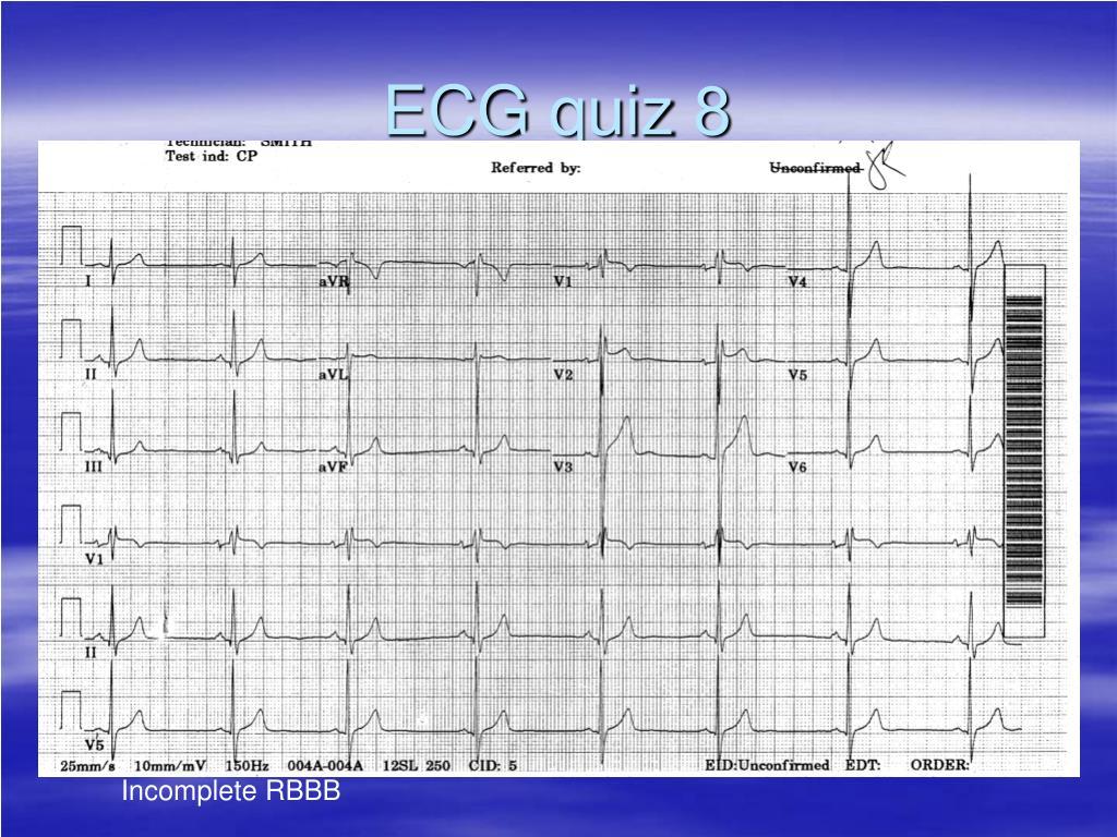 ECG quiz 8