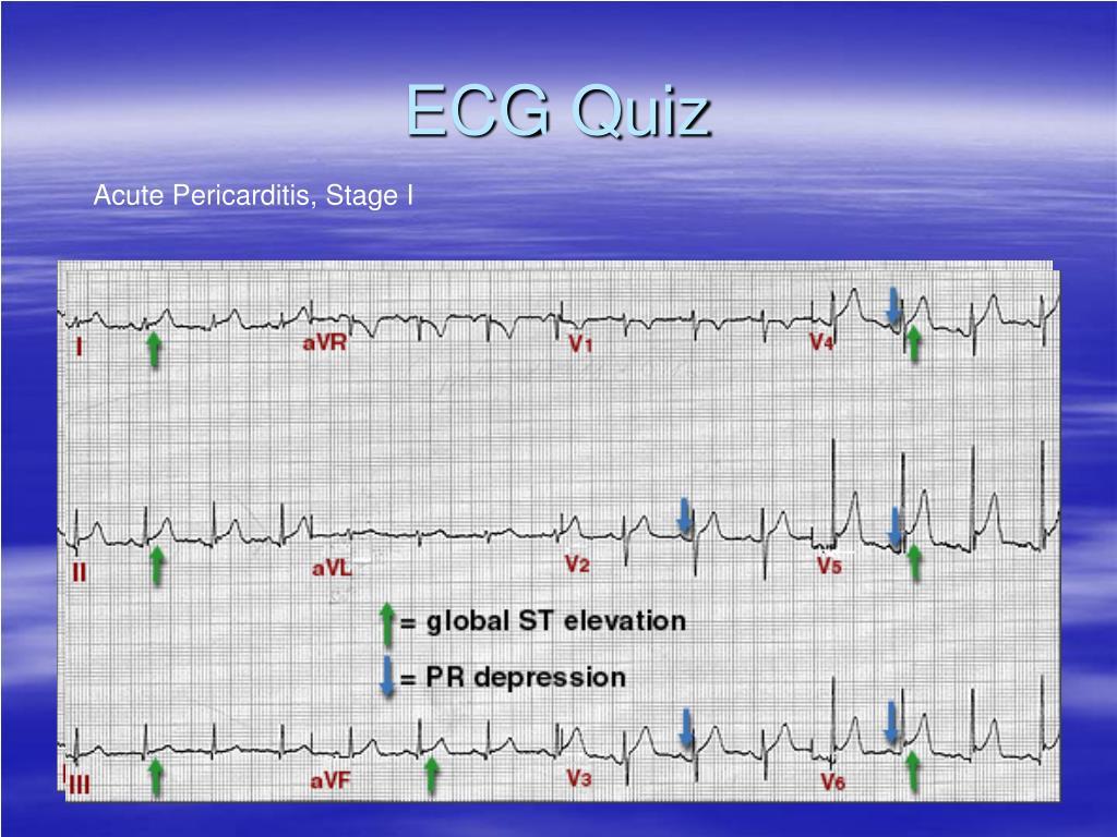ECG Quiz