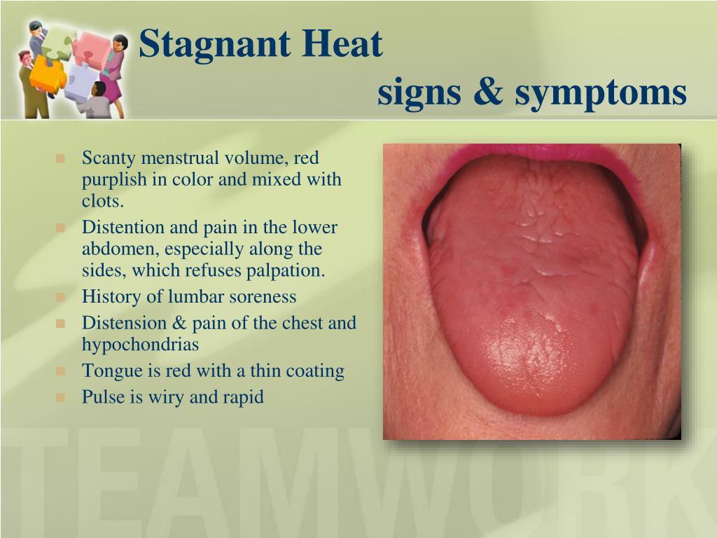 Stagnant Heat