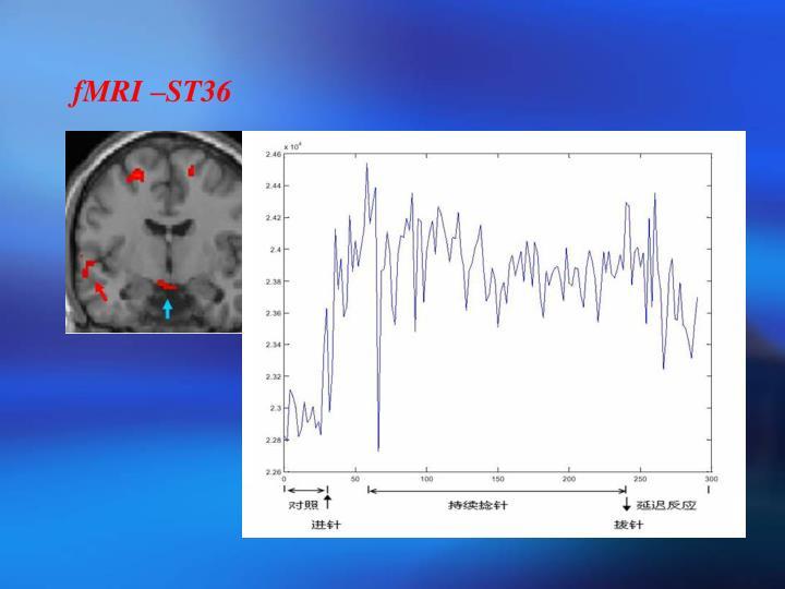 fMRI –ST36