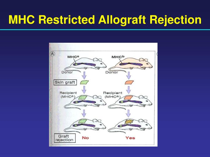 MHC Restricted Allograft Rejection