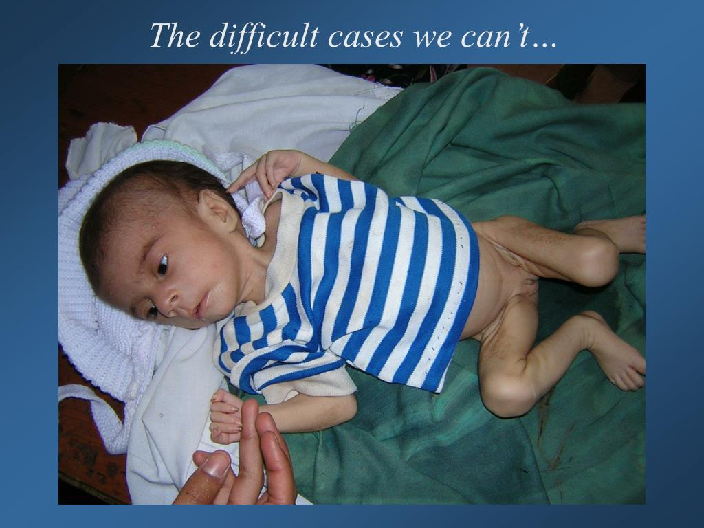 The difficult cases we can't…