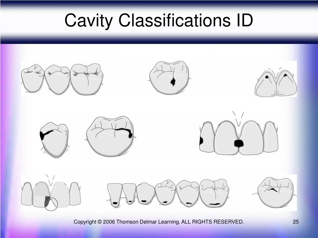 Cavity Classifications ID