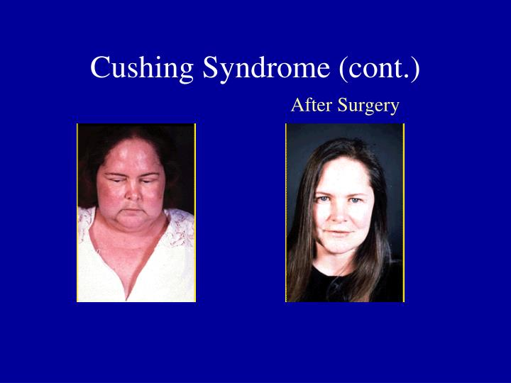 Cushing Syndrome (cont.)