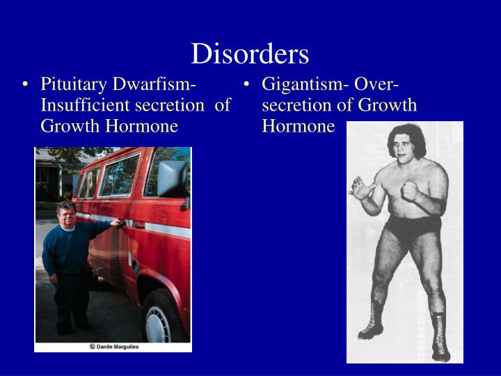 Pituitary Dwarfism- Insufficient secretion  of Growth Hormone