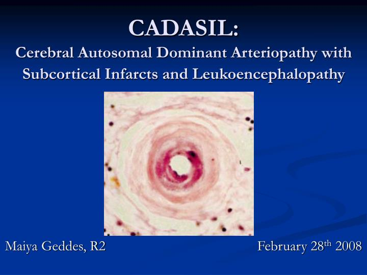 cadasil cerebral autosomal dominant arteriopathy with subcortical infarcts and leukoencephalopathy n.
