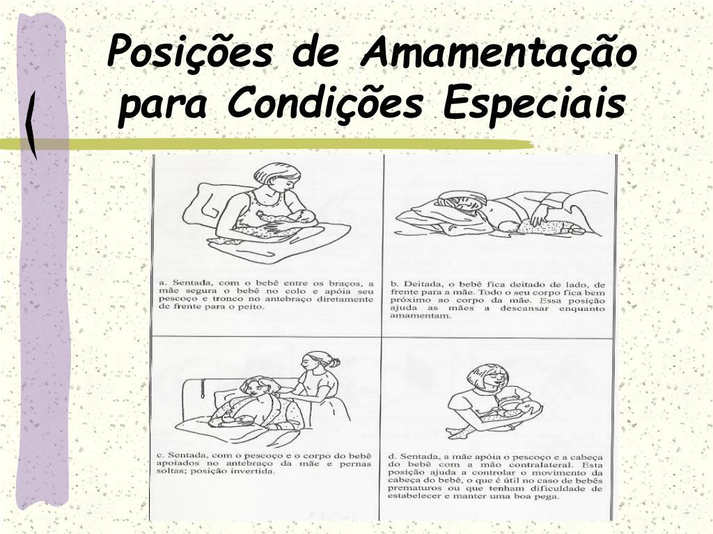 Posições de Amamentação para Condições Especiais