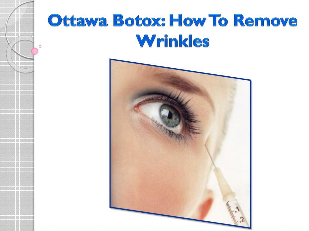 Ottawa Botox: How To Remove Wrinkles
