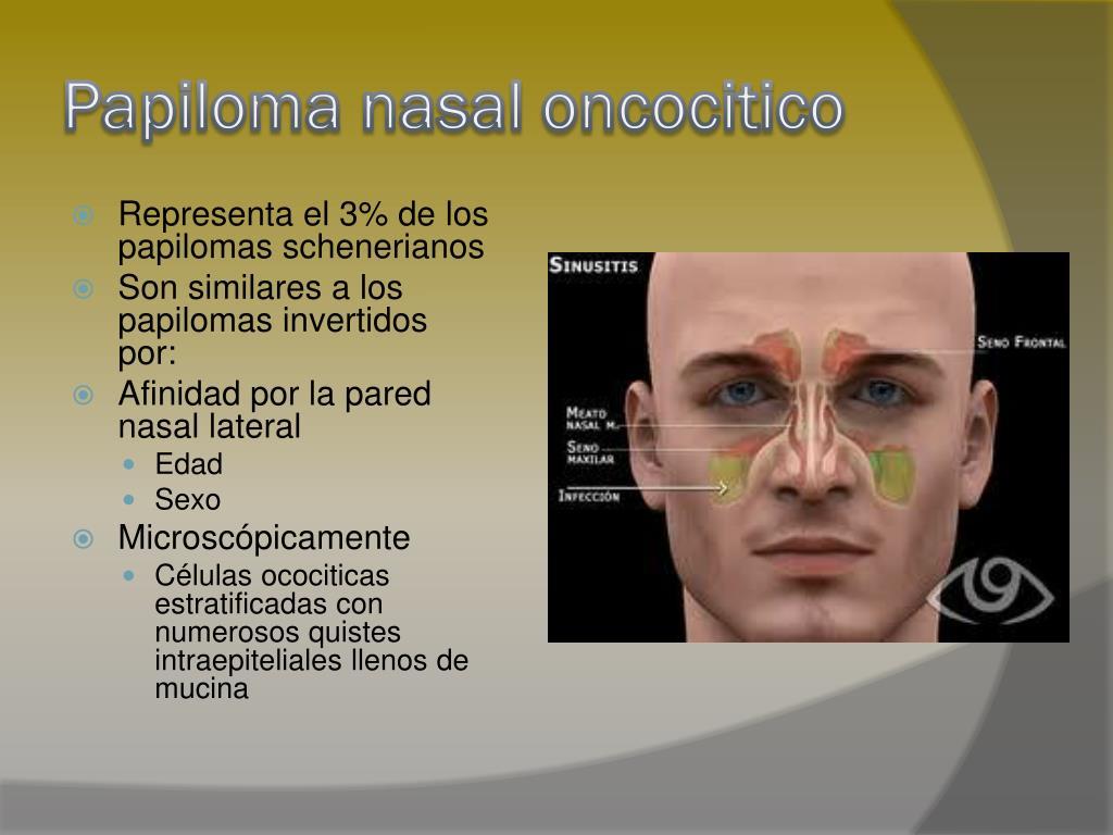Papiloma nasal oncocitico.