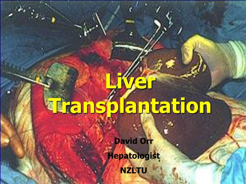 liver transplantation for alcoholic liver disease l.