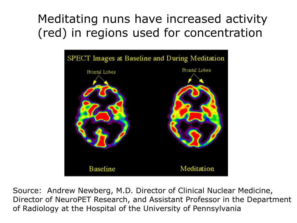 Meditating nuns have increased activity (red) in regions used for concentration