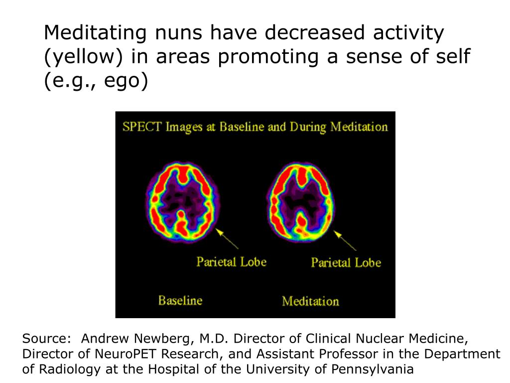 Meditating nuns have decreased activity (yellow) in areas promoting a sense of self (e.g., ego)