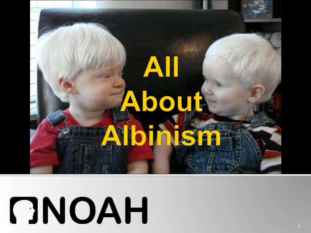 all about albinism l.