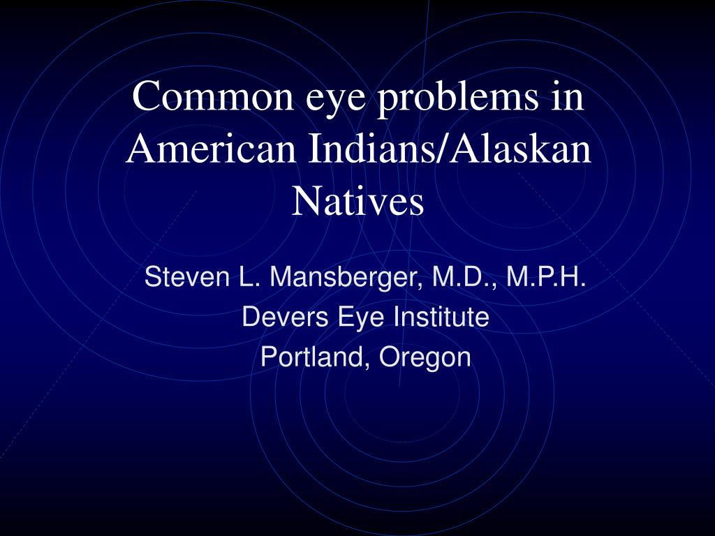 common eye problems in american indians alaskan natives l.