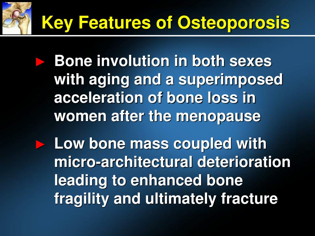 Key Features of Osteoporosis