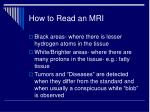 how to read an mri