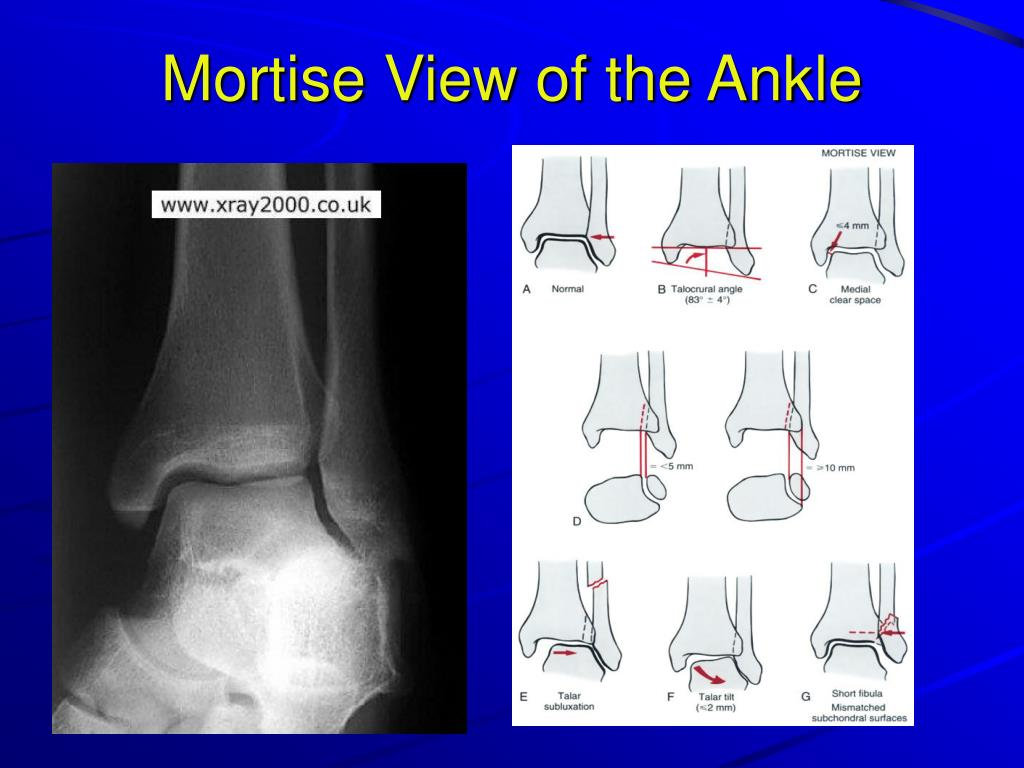 Mortise View of the Ankle