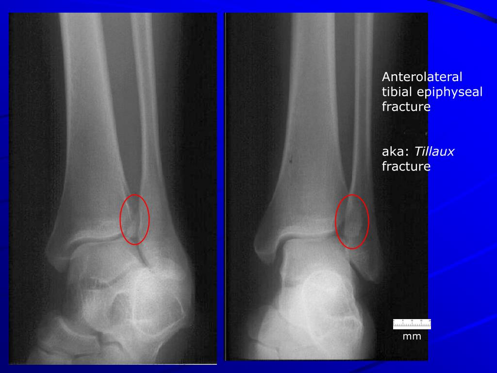 Anterolateral tibial epiphyseal fracture