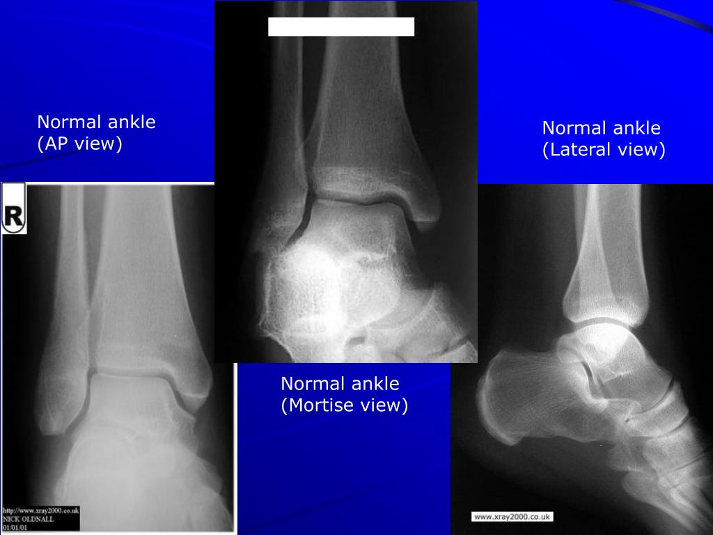 Normal ankle (AP view)