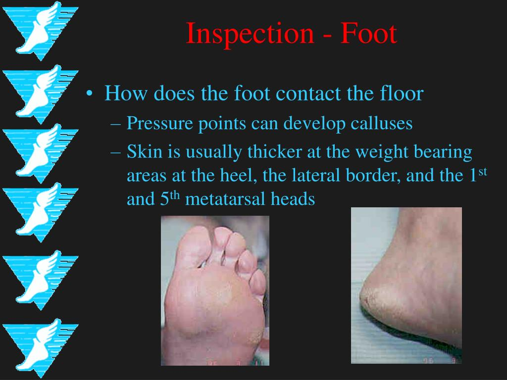 Inspection - Foot