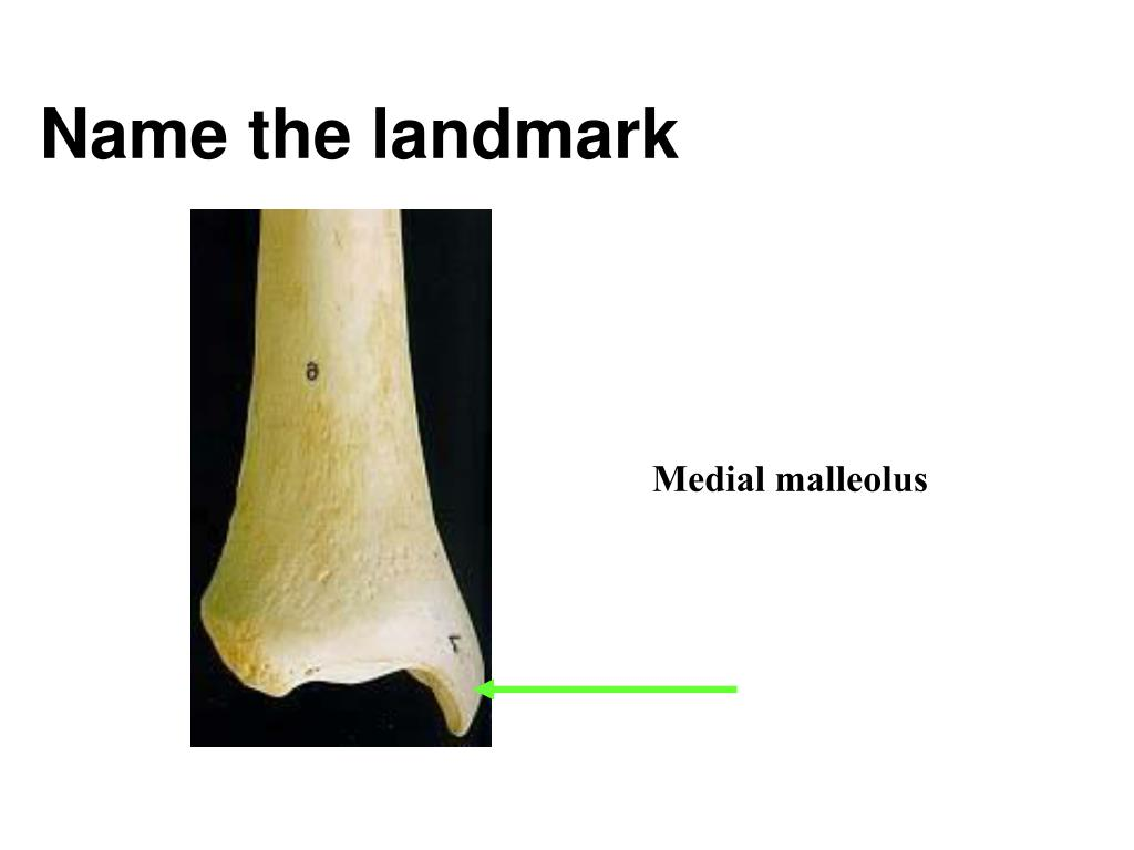 Name the landmark
