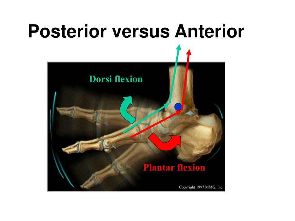 Posterior versus Anterior