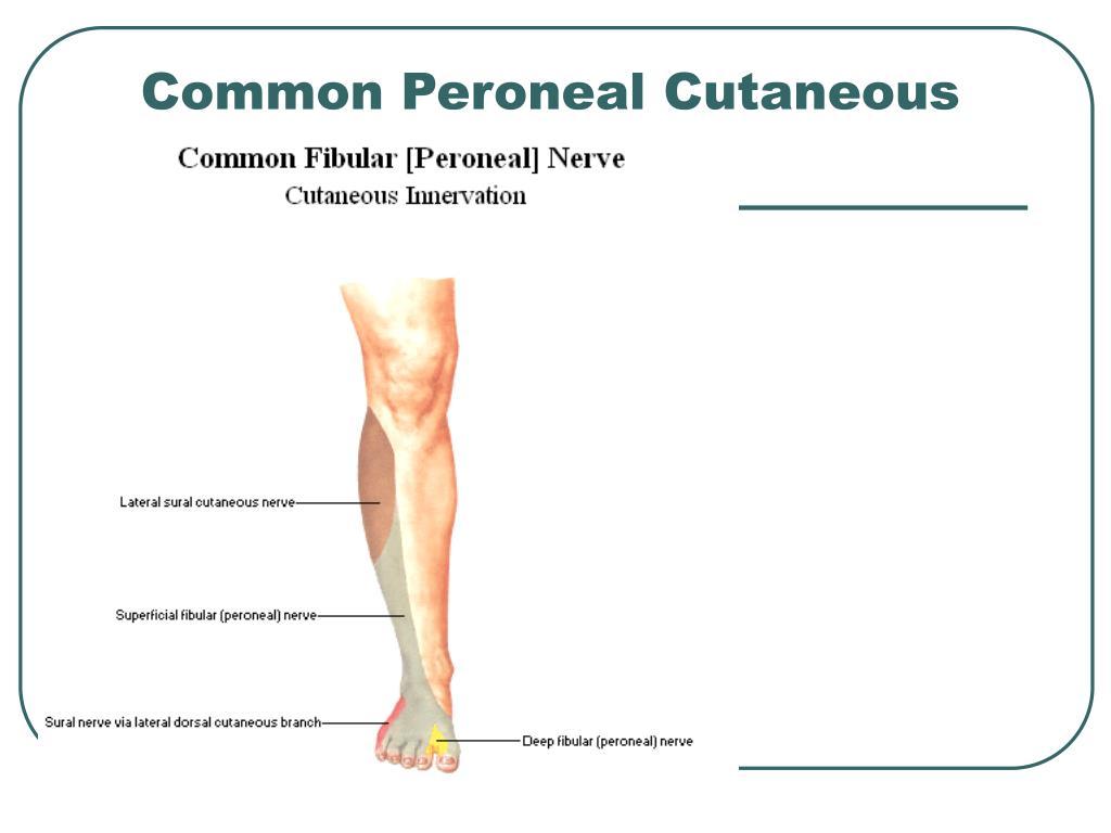 Common Peroneal Cutaneous