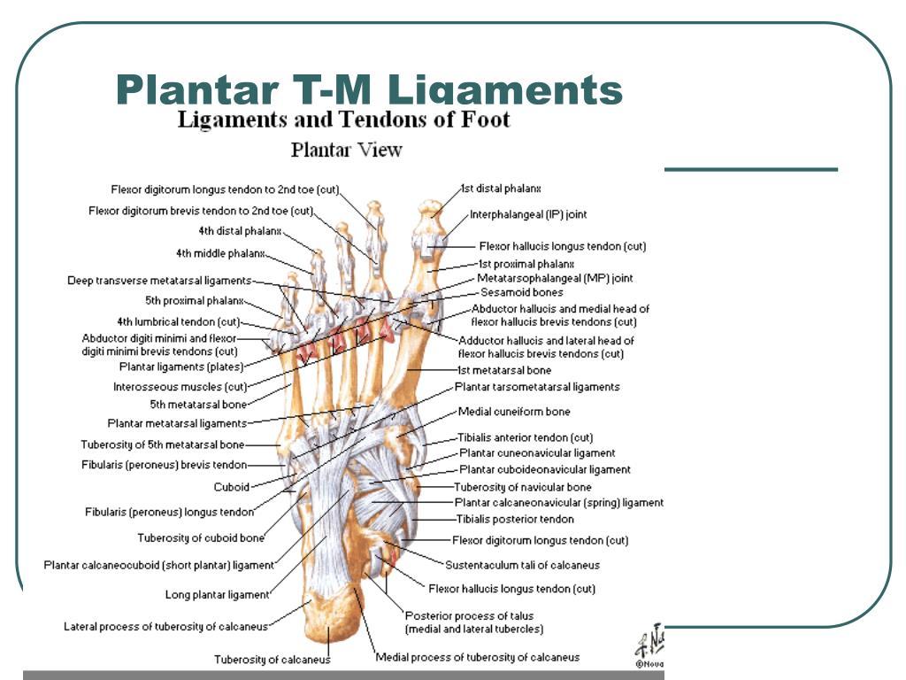 Plantar T-M Ligaments