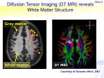 diffusion tensor imaging dt mri reveals white matter structure