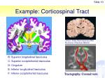 example corticospinal tract
