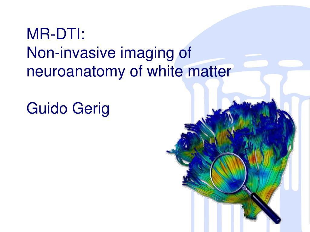 mr dti non invasive imaging of neuroanatomy of white matter guido gerig l.