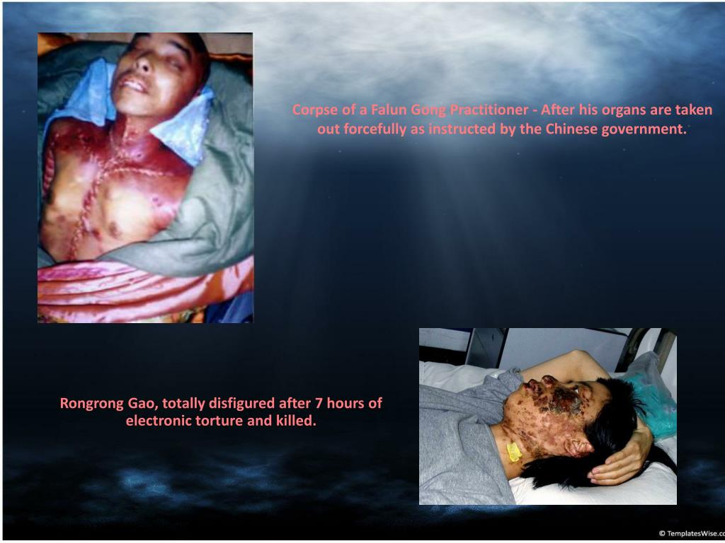 Corpse of a Falun Gong Practitioner - After his organs are taken out forcefully as instructed by the Chinese government.