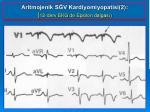 aritmojenik s v kardiyomiyopatisi 2 12 derv e k g de epsilon dalgas