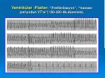 ventrik ler flatter prefibrilasyon hassas periyodun vt si 150 200 dk d zensiz