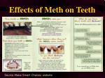 effects of meth on teeth