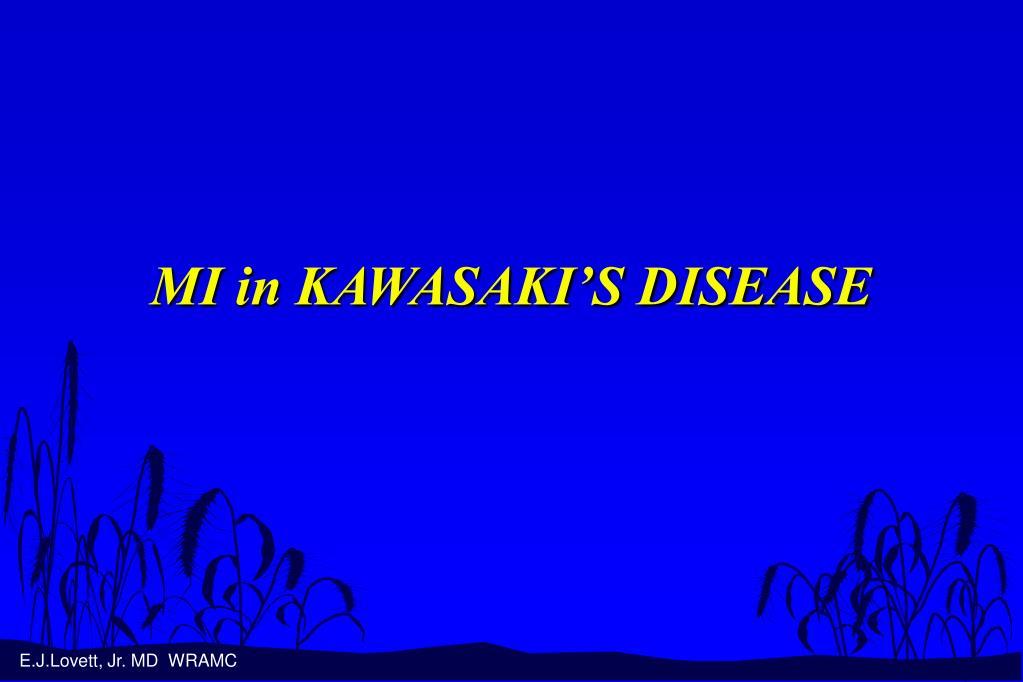 mi in kawasaki s disease l.