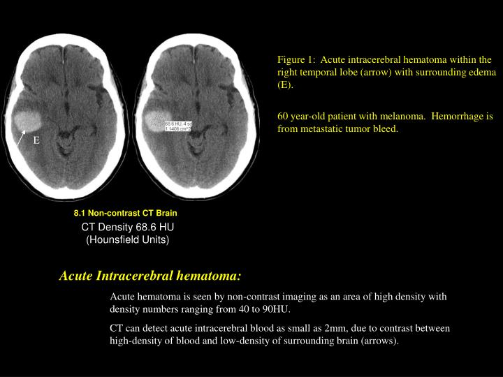 Figure 1:  Acute intracerebral hematoma within the right temporal lobe (arrow) with surrounding edema (E).