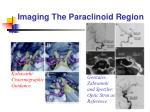 imaging the paraclinoid region