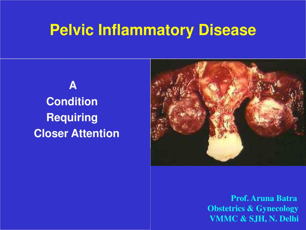 pelvic inflammatory disease l.