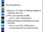 dysrhythmias