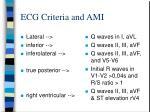 ecg criteria and ami21