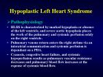 hypoplastic left heart syndrome1